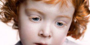 Capelli rossi e occhi azzurri a rischio estinzione