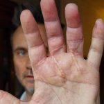 Nek mostra la mano: tenterò di vivere ogni giorno come fosse il primo